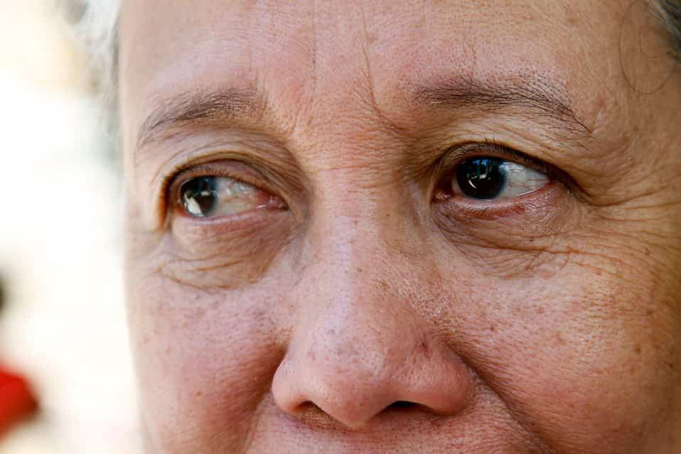 Hamar megjelenhetnek a bőrrák tünetei arcon